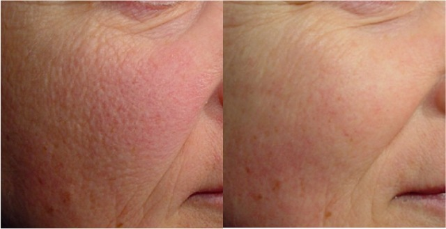 fractional CO2 rejuv before and after